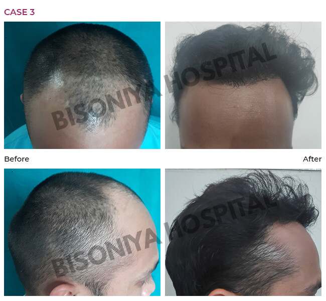 Hair Transplant Bhopal - Case3
