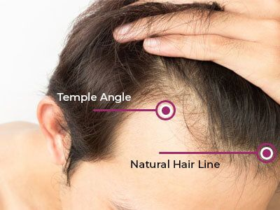 Why Us - Hair Transplant Bhopal